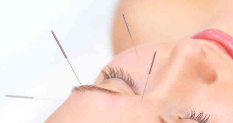 Photo of Cosmetic Acupuncture - Taster Session