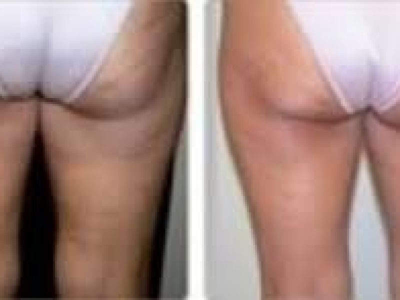 Photo of Icon Ultralift Body - Derriere and Thigh Lift