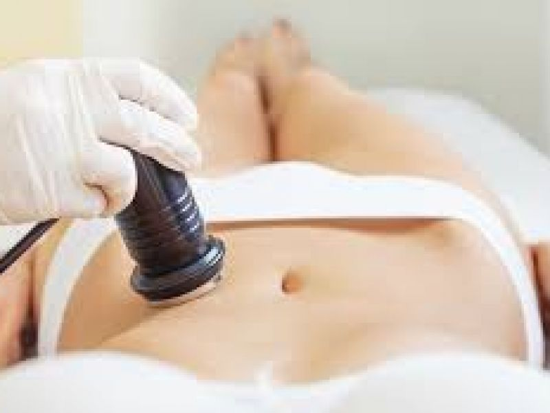 Photo of Ultrasonic Cavitation Body - 6 Sessions
